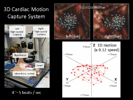 cardiac motion